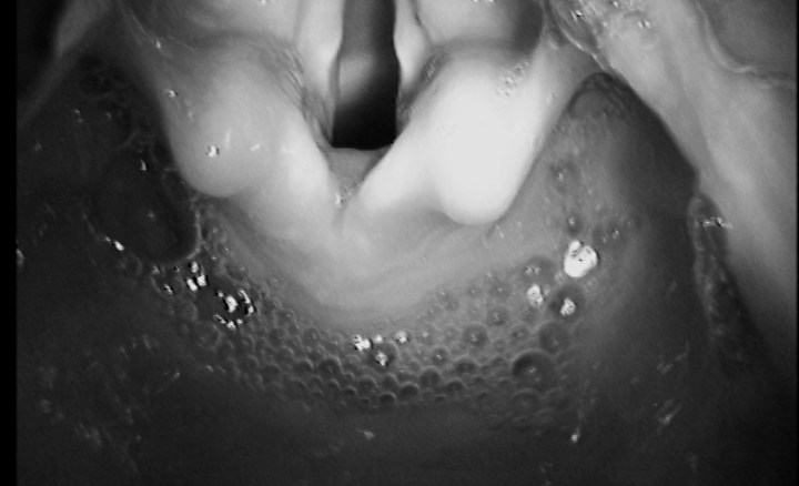 photo larynx with secretions pooling behind it
