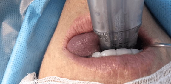 photo showing a cyanotic tongue due to compression from a sub optimally placed LMA supreme