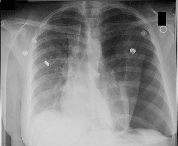 chest X ray of Left tension pneumothorax, with heart and trachea shifted to the right.