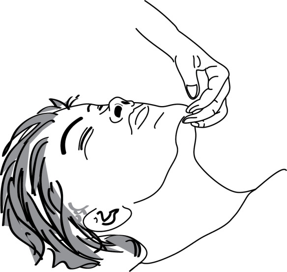 illustration of unconscious patient receiving the chin lift maneuver