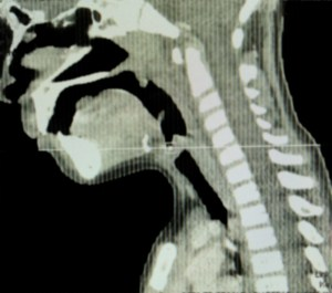 Side view CT scan of the  head/neck of a 5 year old showing posterior pharyngeal swelling due to an abscess.