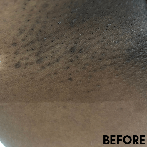 Razor bumps, ingrown hairs