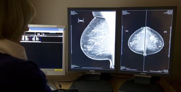 荷蘭癌症死亡人數大幅下降 科學家認為原因有這 3 點