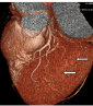 Anatomical variations and anomalies of the coronary arteries: 64-slice CT angiographic appearance