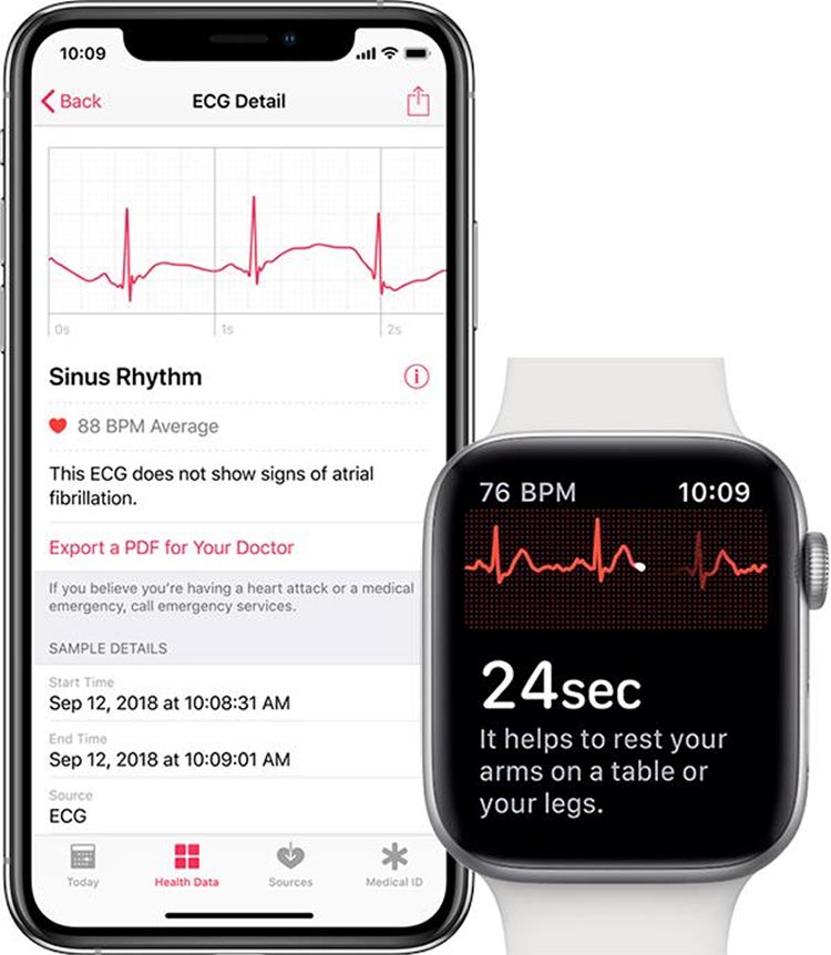 The Apple Watch EKG software uses electrodes on the back of the watch to detect irregular heart rhythms and atrial fibrillation