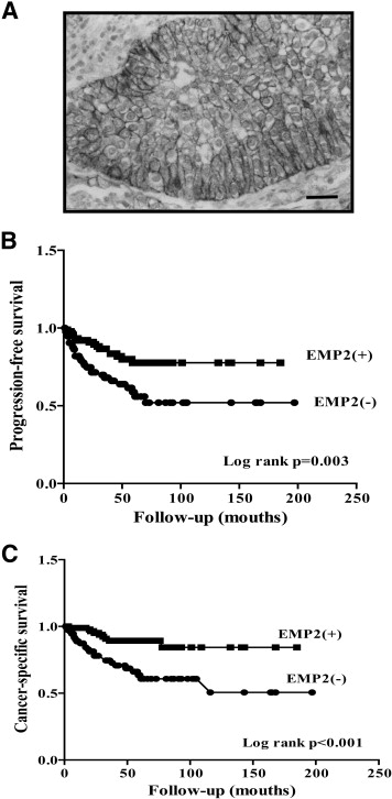 Epithelial Membrane Protein 2 Is a Prognostic Indictor for