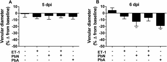 Endothelin-1 Treatment Induces an Experimental Cerebral