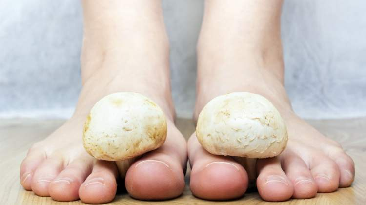 feet with mushrooms: tinea