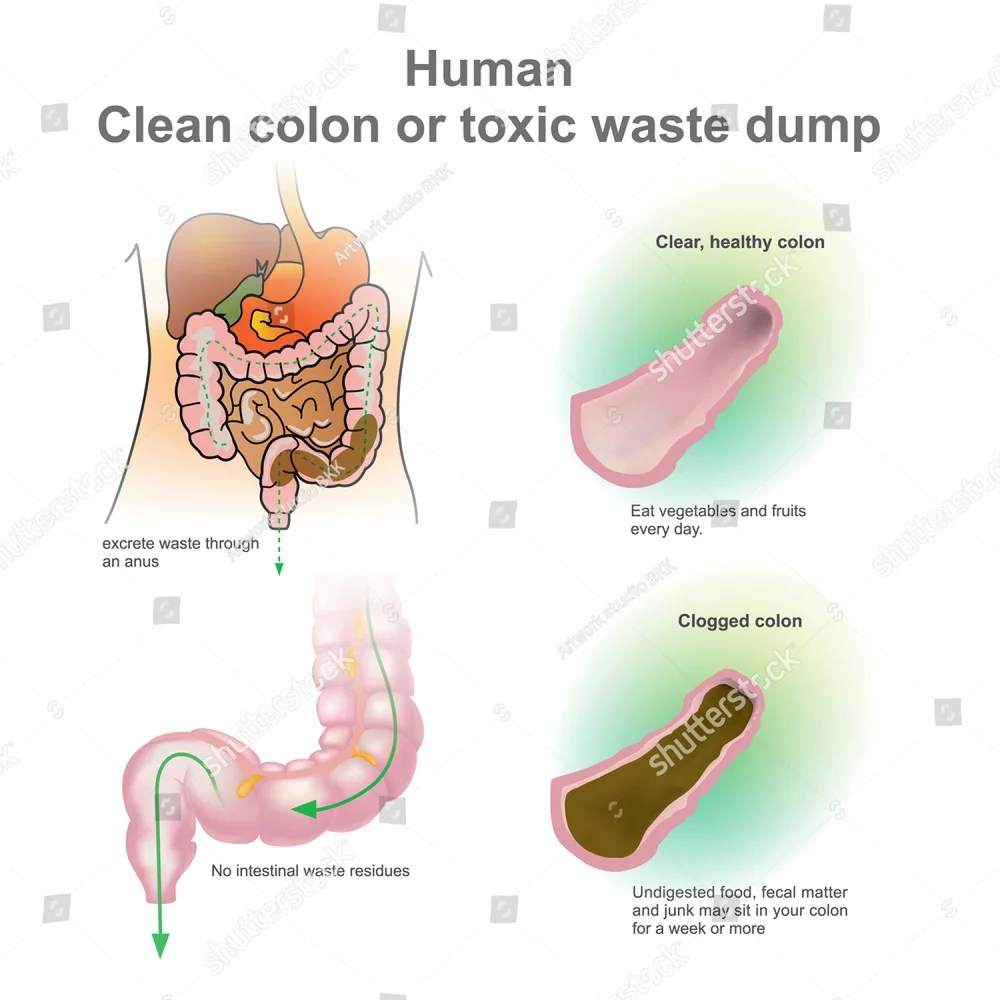 hight resolution of human clogged colon healthy colon toxic waste dump vector illustration ez canvas