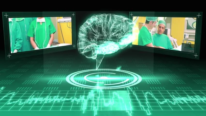 brain model diagram 2008 honda odyssey serpentine belt revolving graphic with interface surgery clips on green background stock footage ...
