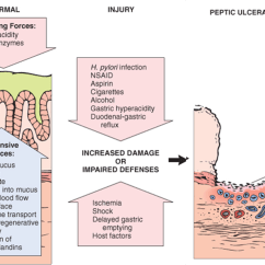 Pathophysiology Of Peptic Ulcer Disease Diagram Sony Xplod Cdx Ca650x Wiring L5 Patho The Rise Caliphate