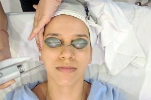 Laser Skin Rejuvenation | Skin Alive