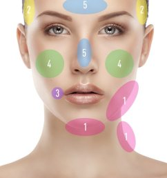 face diagram for pimples diagram  [ 720 x 1821 Pixel ]