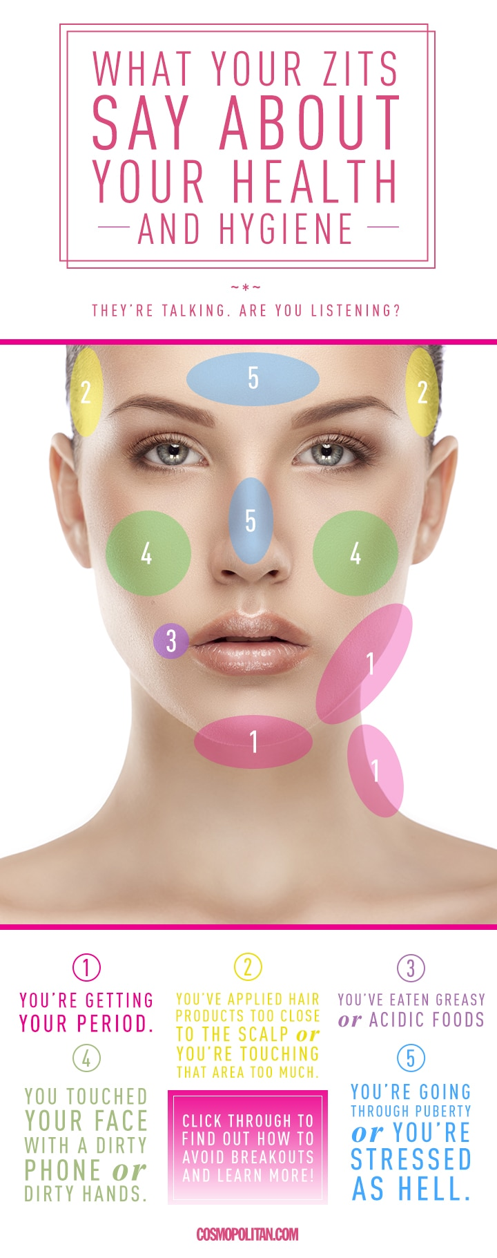 hight resolution of  face diagram for pimples diagram