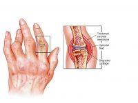 Kakav je uticaj hidžame na bolesnike koji imaju reumatoidni artritis?