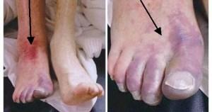 Artäremboli hö underben och fot