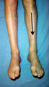 Artäremboli vä underben och fot (pil, blekt ben)
