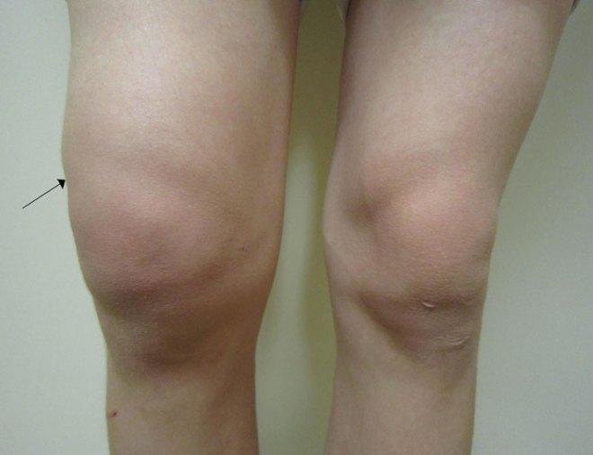 Lyme-artrit
