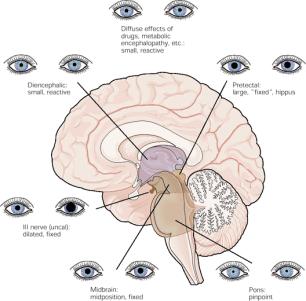 Pupiller nivåbedömning bild hjärna