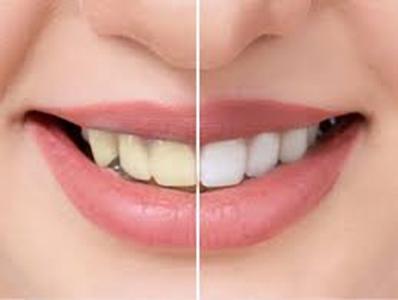 وصفات طبيعية لتبيض الأسنان في المنزل