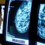 تعافي آلاف البريطانيين من السرطان بعد عقود من المرض