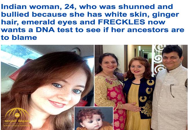 """أصيبت عائلتها بالخوف لحظة ولادتها .. بالصور: قصة شابة هندية تعامل مثل """"الغرباء"""" في بلادها!"""