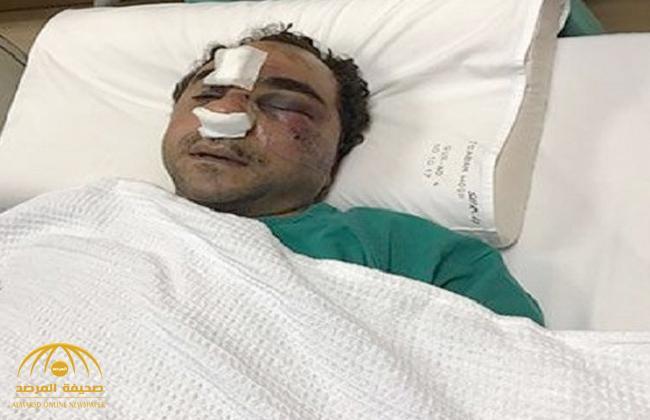 تطور جديد في قضية المصري المعتدى عليه في الكويت