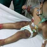 واقعة صادمة.. بالصور: سيدة تعذب طفلها وتصيبه بحروق خطيرة في مصر