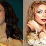 """شاهد المغنية المغربية """"دنيا بطمة"""" تفاجئ متابعيها بما قالته عن خضوعها للتجميل !"""