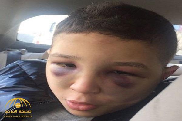 """قالوا """"رأسه اصطدم بالمدفئة"""".. سعودي مصاب بالتوحد يتعرض للعنف في الأردن.. ووالدته تروي التفاصيل!"""