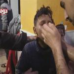 """بالفيديو .. شاهد جريمة """"بشار الأسد"""" بإسقاط براميل متفجرة تحوي مواد كيماوية على المدنيين في الغوطة"""