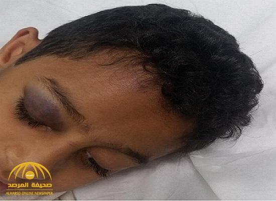 """كاميرات المراقبة رصدت الواقعة"""".. كشف سبب إصابة طالب بكسر في الجمجمة داخل مدرسته بـ""""الطائف""""!"""