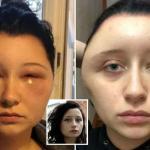 ترجمة حصرية ..شاهد : فتاة بريطانية يتورم وجهها بشكل غريب وتكشف  السبب !