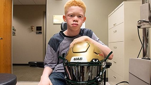 Tinted visor from UAB changes way vision-challenged athletes see the game