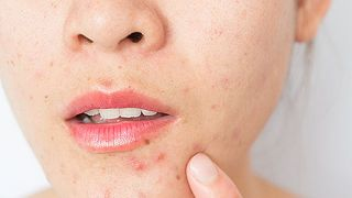 For the acne-prone, face masks may cause breakouts