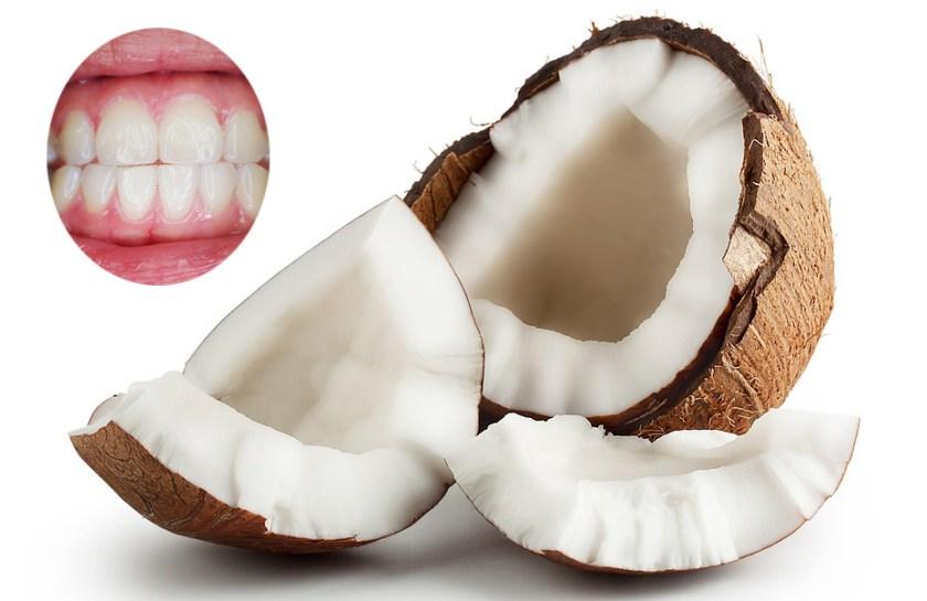 فوائد زيت جوز الهند للأسنان