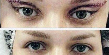 عملية عيون القطط قبل وبعد