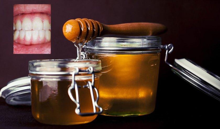 تبييض الأسنان بالعسل