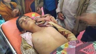 Photo of الأمم المتحدة: مقتل وإصابة أكثر من 1500 مدني في اليمن خلال تسعة أشهر