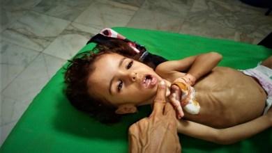 صورة الأطفال اليمنيون يموتون جوعاً.. الأمم المتحدة تحذّر من سوء التغذية الحادّ لأطفال اليمن