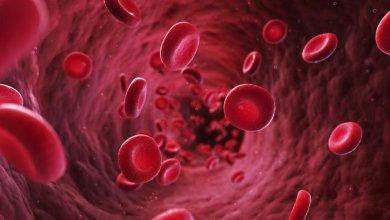 صورة الصحة والمجتمع | ما هي أعراض الثلاسيميا ؟