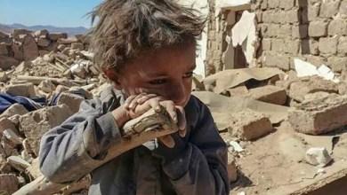 صورة أوقفوا العدوان على اليمن  بدون قيد أوشرط
