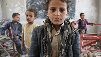 صورة الامم المتحدة تقتل اطفال اليمن