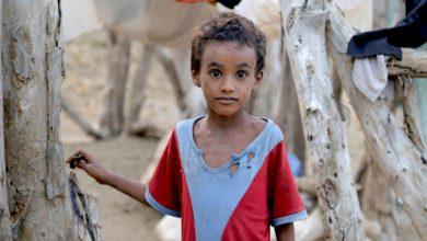 صورة فلتخرس الإنسانية في حضرة طفل اليمن