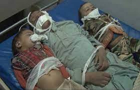 صورة مجزرة اطفال ضحيان جريمة حرب بحق الإنسانية مكتملة الاركان شاهدة للعيان
