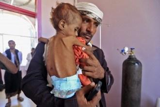 صورة تحذيرات عالمية؛خمسه ملايين يمني على شفا المجاعة وملايين آخرين مهددون بالامراض والاوبئة