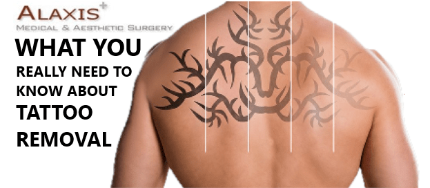 Title tattoo-removal