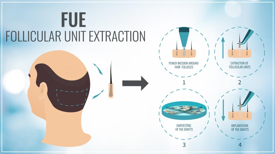 FUE-follicular-unit-extraction-alaxis-aesthetics-clinic-singapore