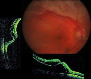 distacco di retina | oct