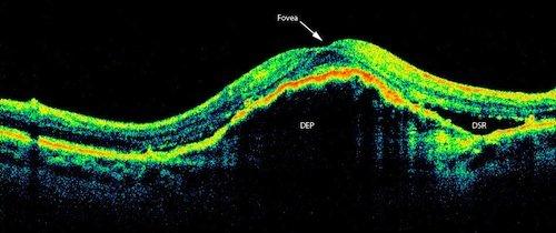 exudative maculopathy